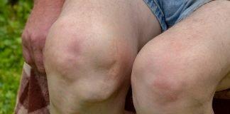 Deformities Of The Knee