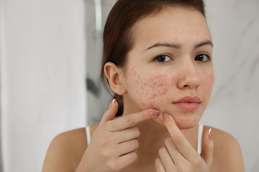 Acne :Definition -- Symptoms -- Causes -- Types -- Risk Factors -- Complications - Home Remedies -- Treatment