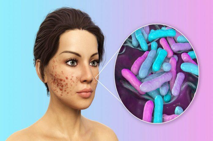 acne Definition