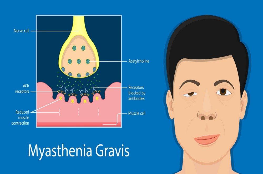 Myasthenia Gravis : Definition, Symptoms, Causes, Types, Diagnosis, Prognosis, Pathophysiology, Complications, Treatment, Living with Myasthenia Gravis