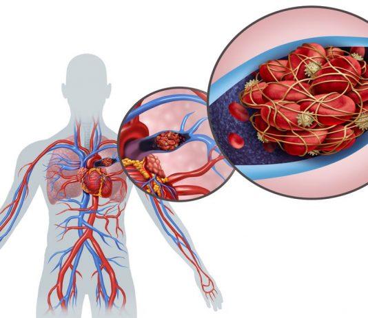 Pulmonary Embolism Pathophysiology