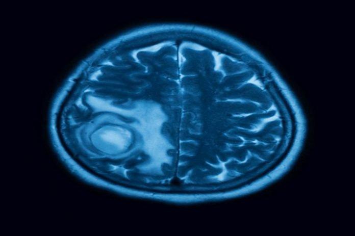 Benign brain tumors