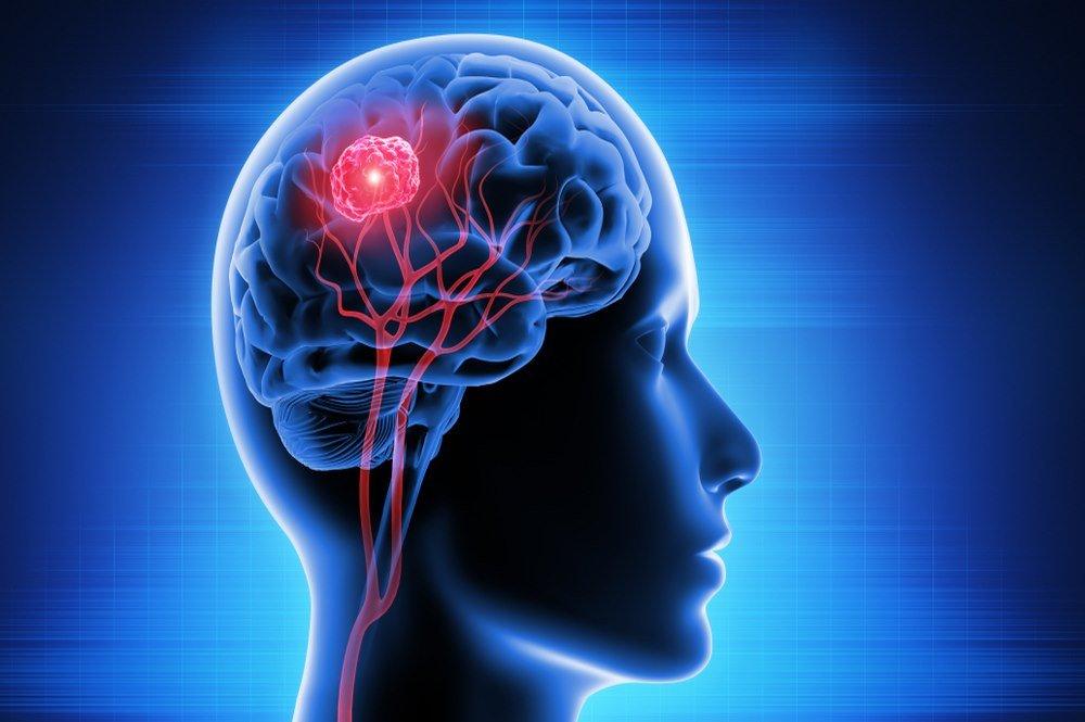 Brain Tumor : Definition, Symptoms, Causes, Risk Factors, Types, Diagnosis, Treatment