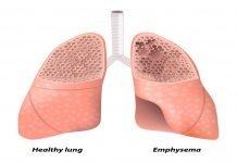 Panlobular emphysema