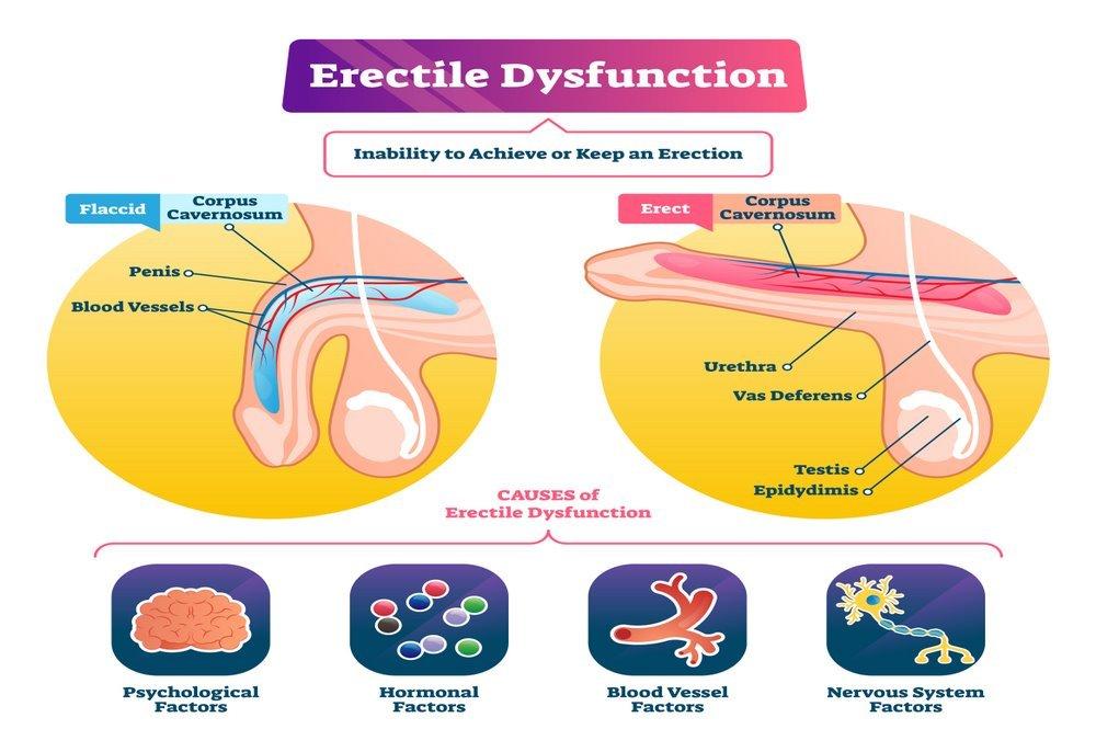Erectile Dysfunction : Definition, Symptoms, Causes, Risk Factors, Diagnosis, Foods To Resolve Proplem, Exercises, Treatment ( Natural Herbs - Surgery) Erectile Dysfunction Medication, Prevention